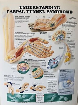 Understanding Carpel Tunnel Syndrome Medical Chart Student Neurological Poster