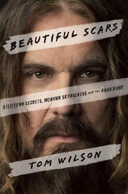 Beautiful Scars by Tom Wilson (author)