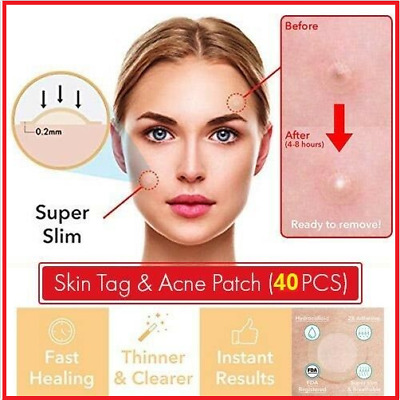 40PCs Skin Tag & Acne Patch - NEW Hydrocolloid Acne and Skin Tag Remover Patches