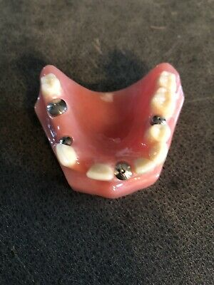 Dental Implant Patient Education Model 4 Implants