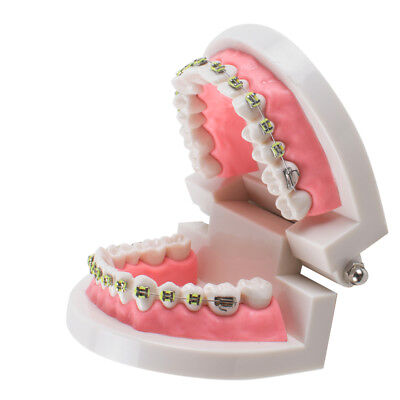 CE FDA Dental Study Orthodontic Typodont Teeth Model With Ligature Ties Brackets