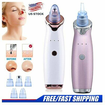 Electric Blackhead Remover Pore Vacuum Suction Dermabrasion Face Cleaner New USA
