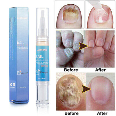 Pro Nail Treatment Liquid Pen Anti Fungal Finger Toe Nail Care Repair Liquid Pen