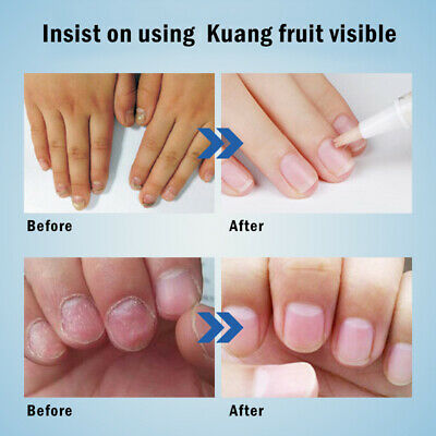 3ml Fungal Nail Treatment Pen Onychomycosis Paronychia Anti Fungal Nail sg95