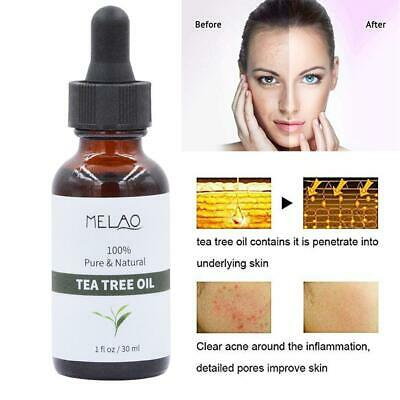 Tea Tree Essential Oil hydrating moisturizing Natural Aromatherapy Therapeutic