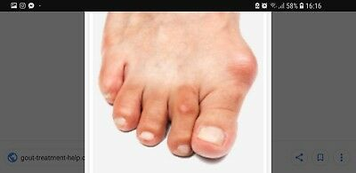 Gout.colchicum Dispert 1Mg Double Strong For Gout Attack.oryginal.help Full.