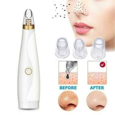 Blackhead Remover Face Deep Pore Cleaner Acne Pimple Vacuum Suction Removal T6O0