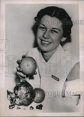 1937 Press Photo Nurse Frances Bailey Holds Grapefruit, Huge Gall Stone
