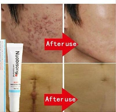 Nuobisong - face treatment care acne scar removal cream blemish stretch marks ##
