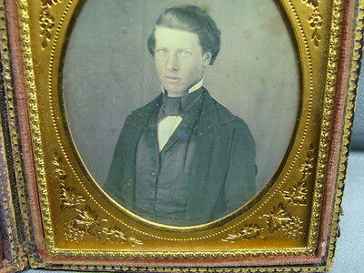 1/6th Plate Daguerreotype Dag Of A Nervous Young Man