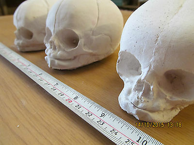 Fetal Skull Replica*Baby Skull*Maternity tool*Midwife*Crude Cast DIY project*