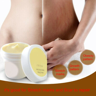 New Cream Remove Scar Stretch Marks Care Postpartum Maternity Skin Body Repair