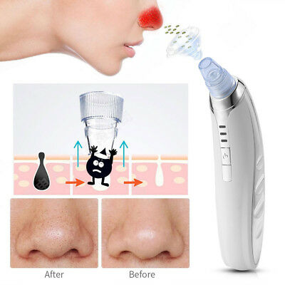 Blackhead Vacuum Acne Cleaner Pore Remover Electric Skin Facial Cleanser Care