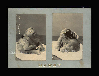 Rare Antique Medical Anatomical Oddities Cabinet Photo Freak Baby - Japan