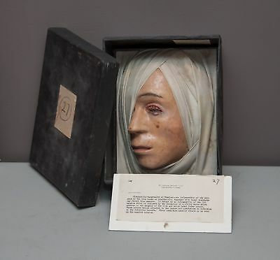 Antique WAX Medical Model HEAD BLEPHARITIS MARGINALIS MEASLES Disease Oddities