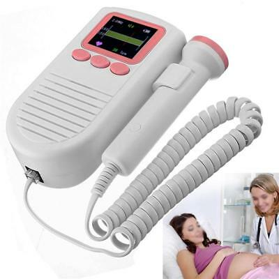 Baby Fetal Doppler Angel Sound Heart Rate Monitor LCD Heartbeat Detector