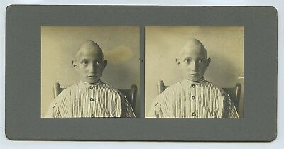 Medical Conditions 1920s - Stereoview & 2 Photos - Naked Woman Deformed Head