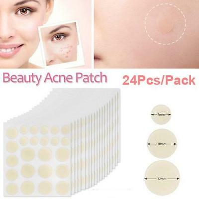 Acne Pimple Master Patch Face Spot Scar Care Treatment Stickers 24Pcs/Pack AU
