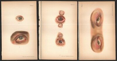 External Ophthalmic Eye Diseases  Lot of 3 Color Medical Prints c1900 A3