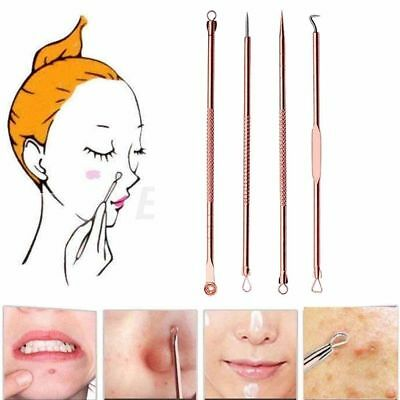 4Pcs/Set Stainless Steel Blackhead Acne Pimple Popper Extractor Remover Tool YE