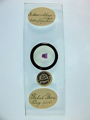 Antique Microscope Slide by Watson. Foetal Bone. Intracartilaginous ossification