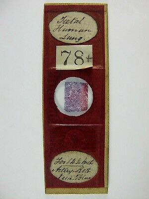 Antique Microscope Slide by C.M.Topping. Foetal Human Lung. Artery Red/Vein Blue