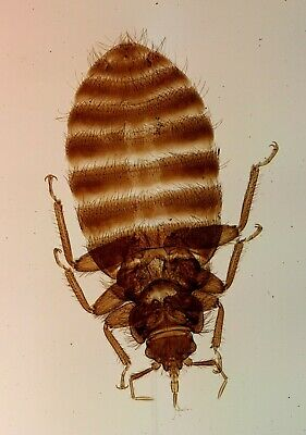 """Antique Microscope Slide by C.M.Topping. """"London Bed Bug""""."""