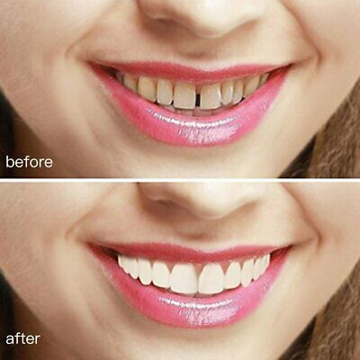 Perfect Instant Smile Comfort Fit Flex Teeth Whitening Denture Paste Cover  AG