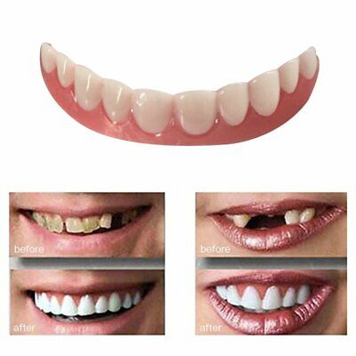 Perfect Instant Smile Comfort Fit Flex Teeth Whitening Denture Paste Cover BW