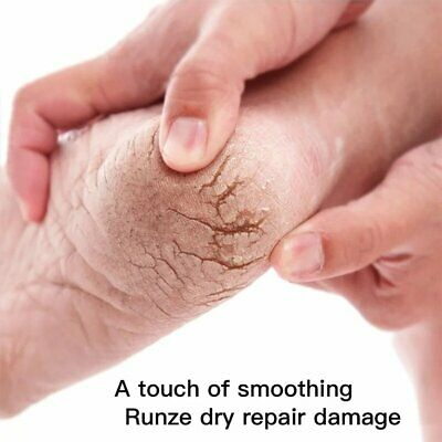 Natural Formula Hand Foot Crack Cream Anti Dry Crack Skin Care Repair C Iヤ