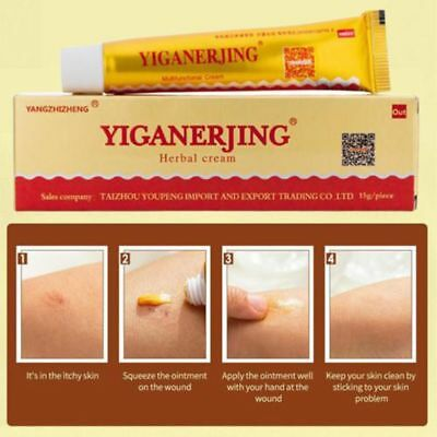 Hot Sale Anti Fungus Pruritus Chinese Herbal Ointment Sulfur Soap