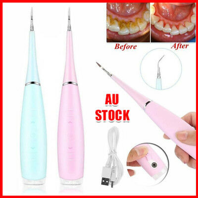 Medical Electric Dental Scaler Tartar Calculus Plaque Remover Teeth Stains +