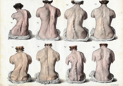 2 Antique Medical Prints-ERECTOR SPINAE MUSCLES-RETRACTION-Pl. O-Bourgery-1831