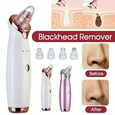 Electric Facial Skin Care Pore Blackhead Remover Cleaner Vacuum Acne Cleanser CO