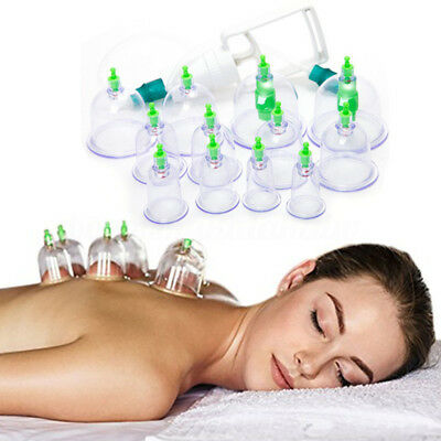 12 Cups Set Vacuum Cupping Kit Massage Acupuncture Suction Massager Pain Relief