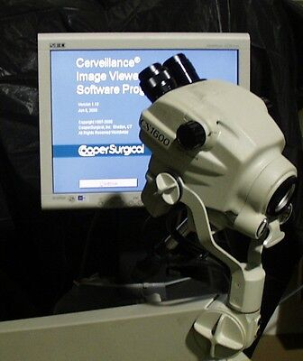 Cooper Surgical CS1600 Digital Video Colposcope