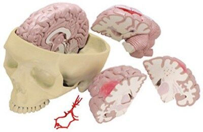 Anatomical Brain & Partial Skull Cranium Model OVERSTOCKED RETURNED by customer
