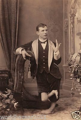 Victorian Curiosity The Lobster Crab Boy Circus Sideshow Freak Show Freakshow