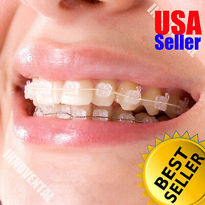 HUBIT Crystal Sapphire Orthodontic Brackets Braces ROTH 3-3 UPPER ONLY (6pcs)