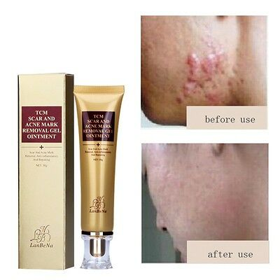 ACNES & SCAR REMOVAL CREAM Remedies for Spots, Scaring, Blemish Beauty 30g