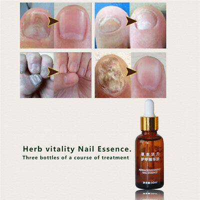Finger Toe Repair Essence Nail Fungus Onychomycosis Removal Treatment Oil Little