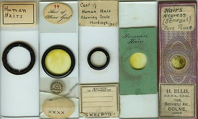 5 Human Hair Microscope Slides by Various Makers