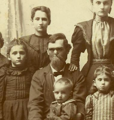 c 1880 MAN w SEVERE MEDICAL FACE DEFORMITY, w LARGE FAMILY of 10, CLEFT PALATE ?