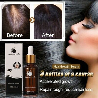30ML Shampoo Fast Hair Growth Serum Fibers Growing-faster Hair Loss Treatment