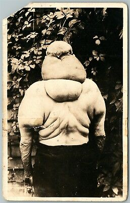 ELEPHANT MAN DISEASE ANTIQUE REAL PHOTO POSTCARD RPPC back view