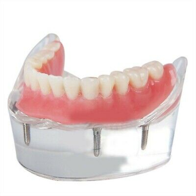 FDA Dental Implant Restoration Teeth Model Over-denture Inferior with 4 Implant