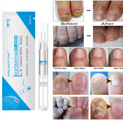 3ml Anti Fungal Nail Treatment Finger Toe Nail Care Fungus Repair Liquid Pen