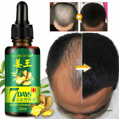 Hot Sale Healthy Growth Ginger Germinal Hair Serum Oil Effective Fast Growth