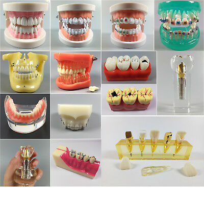 Dental Implant Orthodontic Periodontal Disease Anatomical Caries Study Model *1