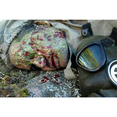 Toxic Burn Prosthetic Wound - Wounds Stick Fake Cuts Injuries Special Effects